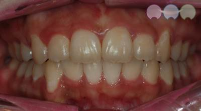 After-Orthodontic Treatment