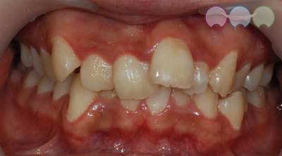 Before-Orthodontic Treatment