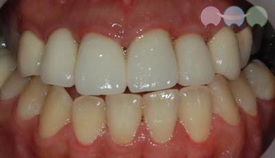 After-Cavity Treatment & Crown