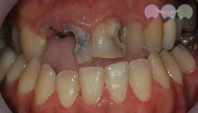 Before-Cavity Treatment & Crown