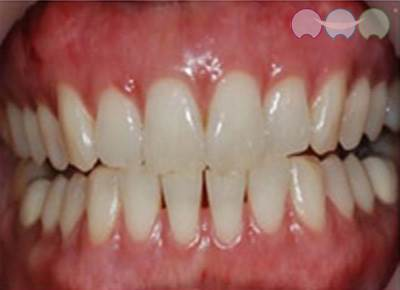 After-Gum Bleaching