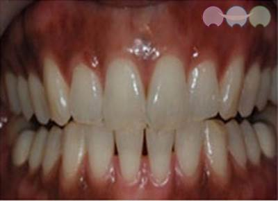 Before-Gum Bleaching