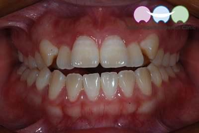 Before-Orthodontic