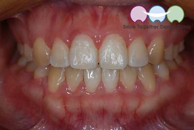 After-Orthodontic